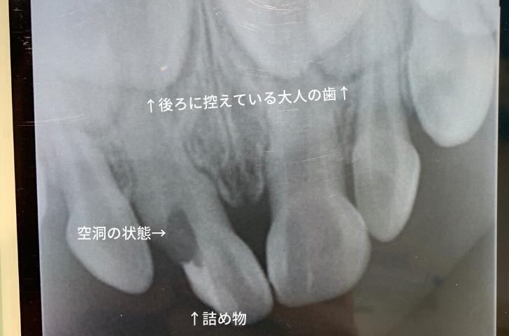 歯が欠けた後のレントゲン写真