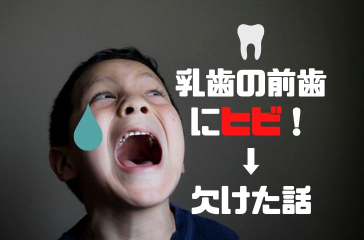 乳歯の前歯にヒビ→欠けた話