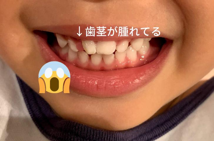 なくなった歯の歯茎の部分が腫れている