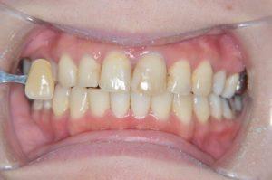 FAPホワイトニング前の歯の写真